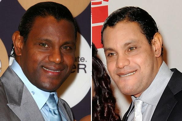 black-copy-sammysosa-bleaching-black-skin
