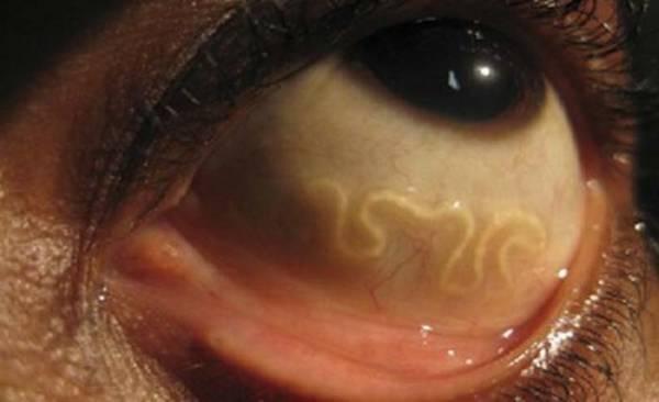 Que les parasites se distinguent des carnassiers