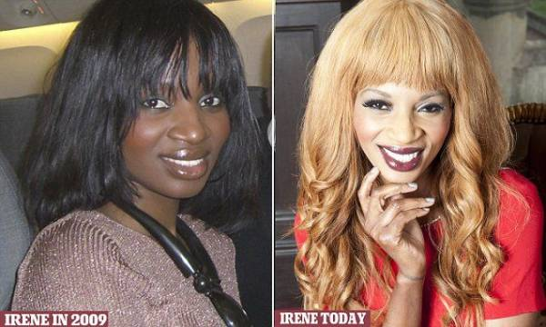 Celebrities Who Openly Bleached Their Skin 10