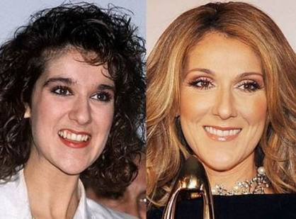 celine-dion-before-and-after-plastic-surgery.jpg